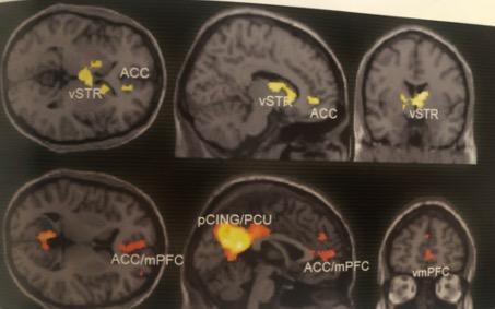 Výskum neorónov zachytený na fotke